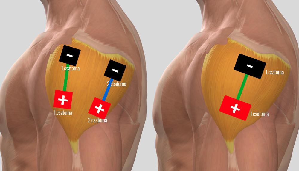 vállízület fáj egy stroke után modern gyógymódok ízületi fájdalmakhoz