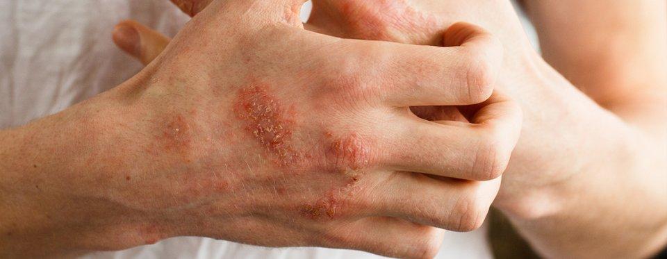 Az aranyér kezelése házi gyógymódokkal