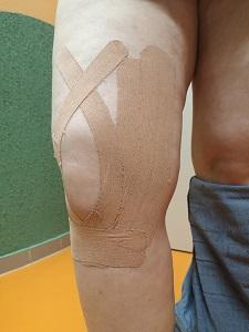 kinesio szalag térdben artrózis esetén együttes kezelés kenőcsrel