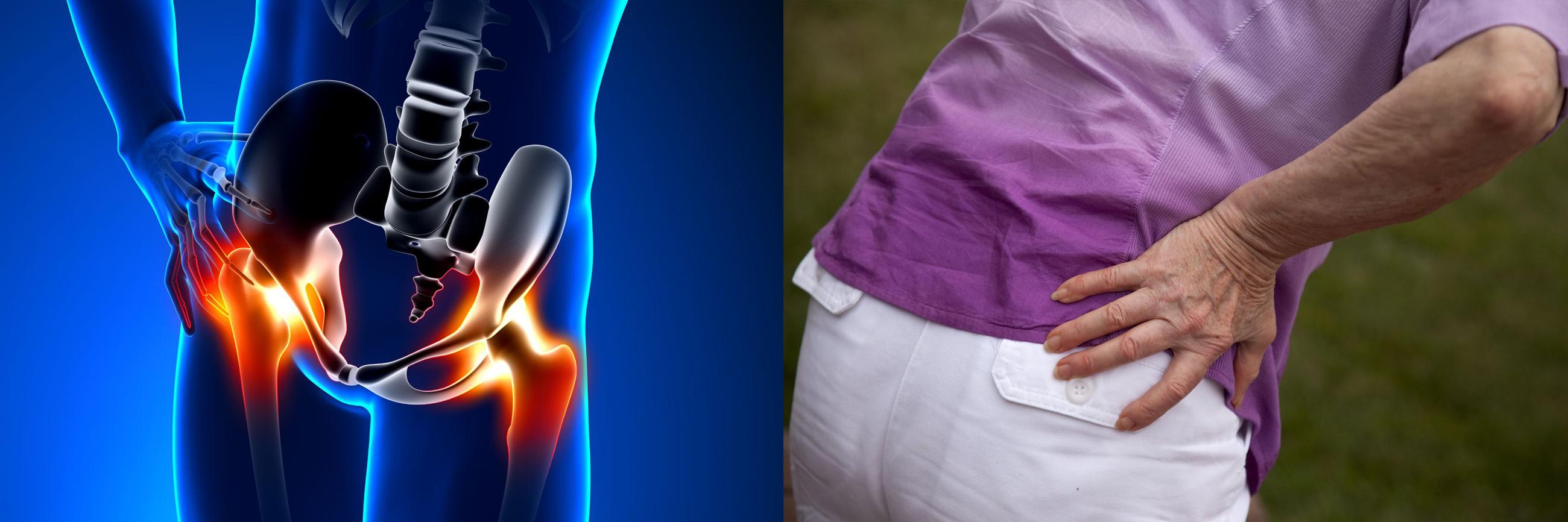 a csuklóízület deformáló artrózisának kezelése synovitis bursitis térdízület kezelése