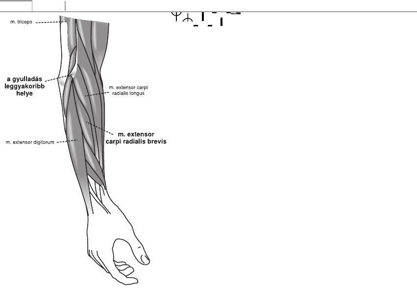 a lábujjízület súlyos fájdalma