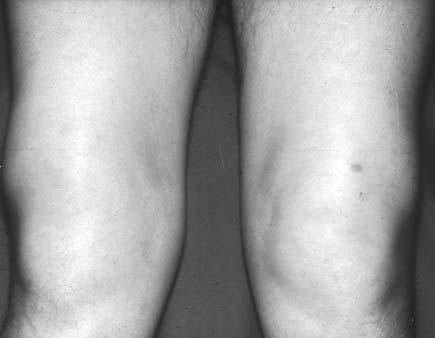 a térd artrózisos