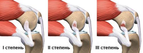 vesszők a térd artrózisához)
