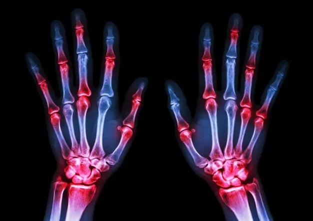 rheumatoid arthritis hogyan lehet kezelni