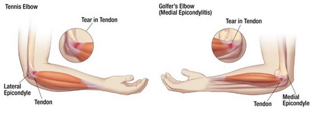 ezoterikus ízületi duzzanat hogyan lehet kezelni a lábán lévő gyulladt ízületet