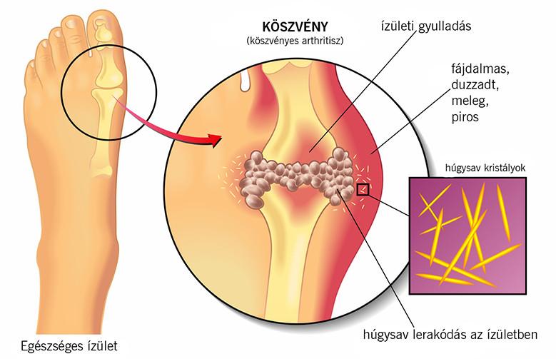 a lábujjak kis ízületeinek ízületi gyulladása