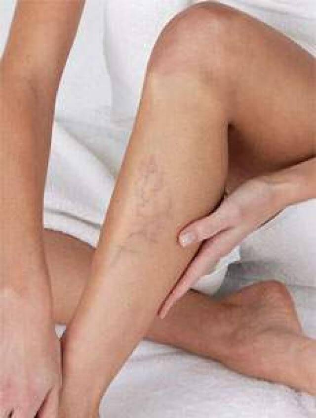 vállízület akut ízületi gyulladása megnyomja az ízületet, mert fáj