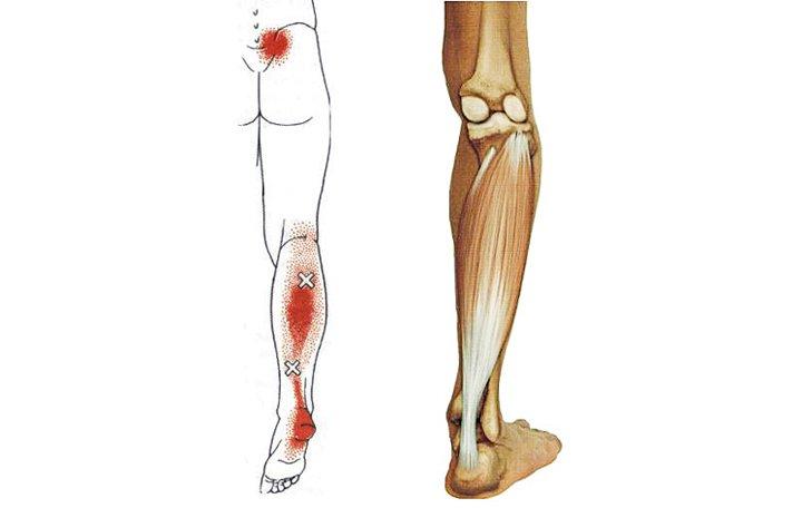 ízületi fájdalom és görcsök hol kezdje el a térd artrózisának kezelését