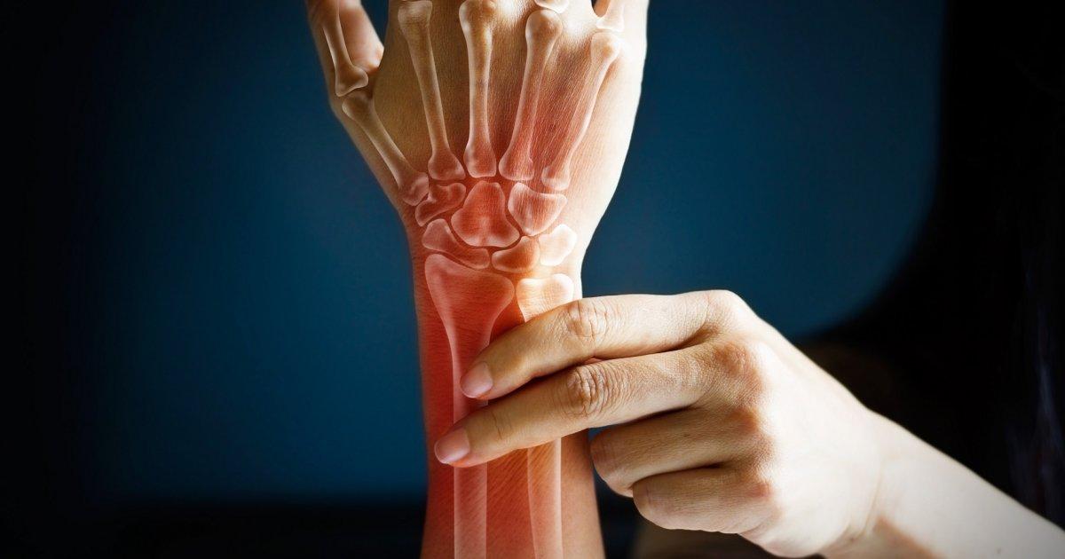 ízületi gyulladás csuklóízület gyulladás a hüvelykujj ízületének duzzanata