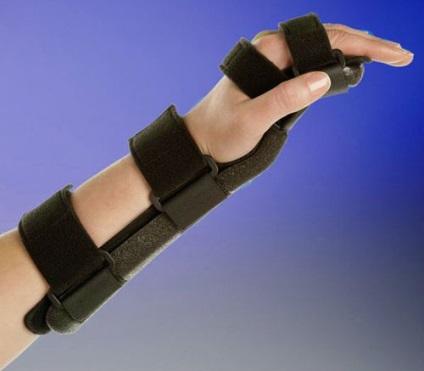 sétáló ízületi fájdalmak okai és kezelése hogyan kell kezelni a csípőízület trocharteritist