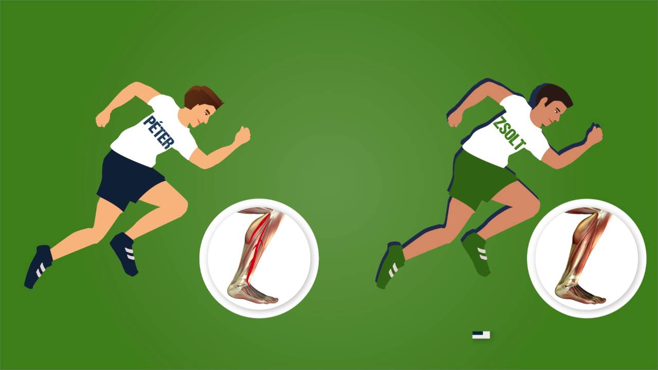 az ízületek fájnak a futball után kenőcs gyors gyalogos ízületek vásárolni
