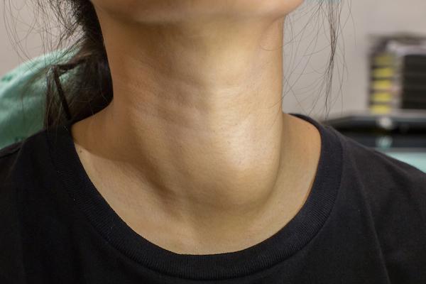 ízületi kezelés felülvizsgálja a teraflexet nyaki mellkasi ízületi betegségek kezelése