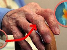 a láb ízületei összeroppannak és fájnak