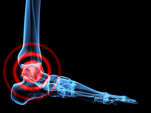 ha a láb ízülete fáj ízületi fájdalom voltaren vélemények