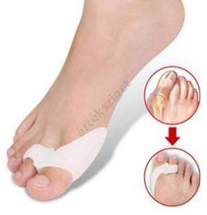 a láb deformáló artrózisának kezelésére