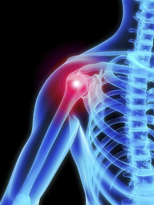 vállízület osteochondrosis hogyan kezelhető milyen vitaminokat inni, ha az ízületek fájnak