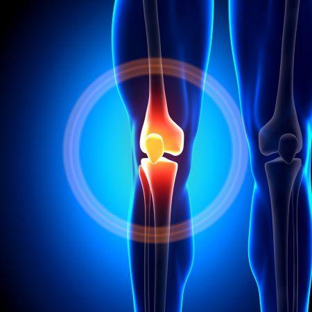 Oszteoartritisz, artritisz, oszteoartrózis