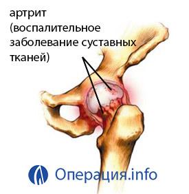 a csípőízület 3 fokos posztraumás artrózisa