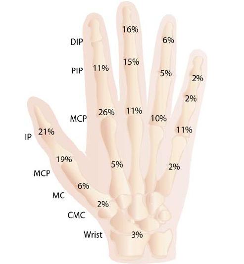 kúpok az ujjak ízületein sérülés után fáj térdízület és könyök