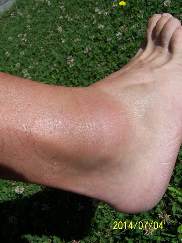 hogyan kell kezelni a boka ízületét a lábakon csukló artrózis. kezelés