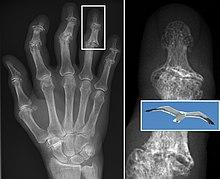 mild first mtp joint osteoarthritis icd 10