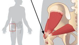 Csípő ütközési szindróma | agnisoma.huán István ortopéd sebész praxisa