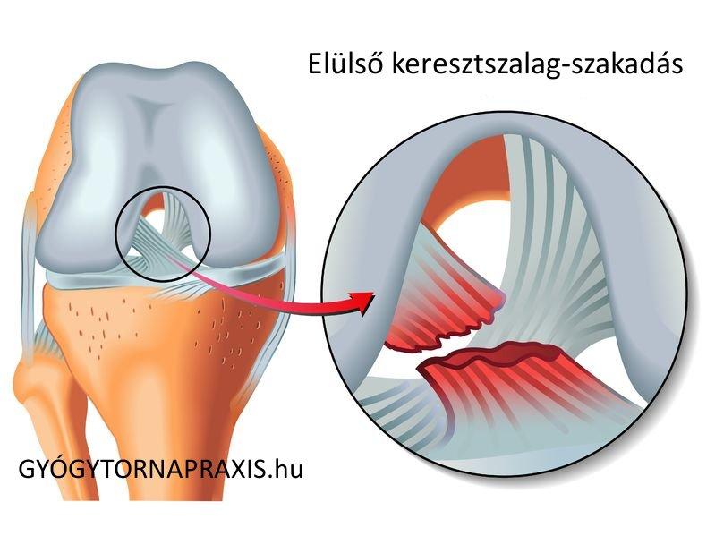 koksz artroxis csípő áttekintés az artrózis kezeléséről a cseh köztársaságban