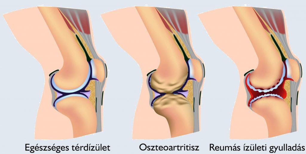 a térdízület tüneteit és kezelését vezérli