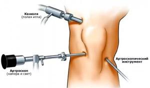 A csípőízület coxarthrosisának kezelése Bubnovszkij módszerével - gyógyító torna