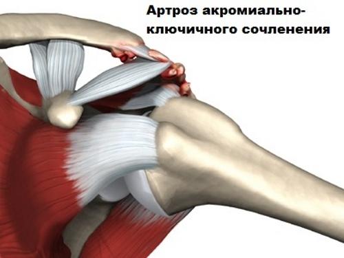 a csípőízület deformáló artrózisa 3 fokkal