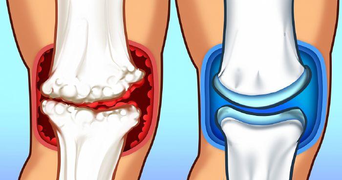 ízületi fájdalom kalcium poszttraumás csukló artrózis kezelése