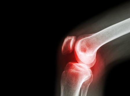artrózisos midocalmus kezelés