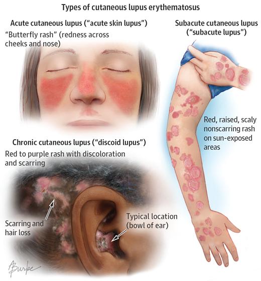 gyógyszer térdízületi fájdalmak kezelésére
