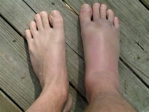 duzzadt lábak a bokaízületben duzzadt és fáj a váll