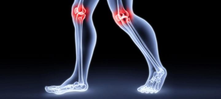 ízületek kenése fájdalom a karokban és a lábakban az ízületekben