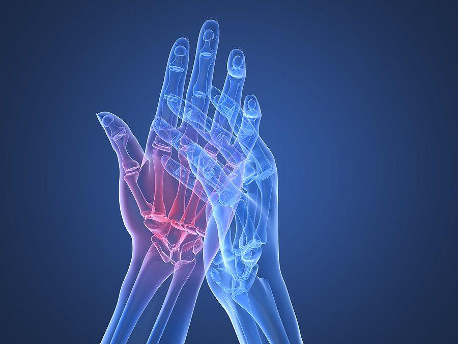 hogyan lehet kezelni a rheumatoid arthritis tablettákat
