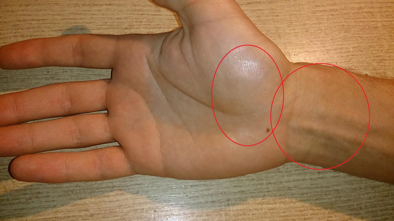 csípőfájás az ízületpótlás után