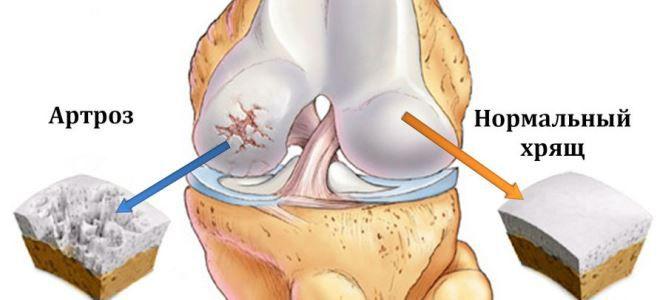 a teraflex térdízületi gyulladást kezel