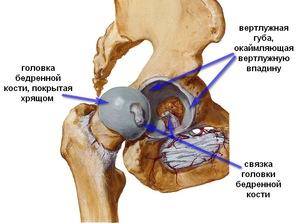 3. a csípőízület deformáló artrózisa. kezelés térd íngyulladás kezelése
