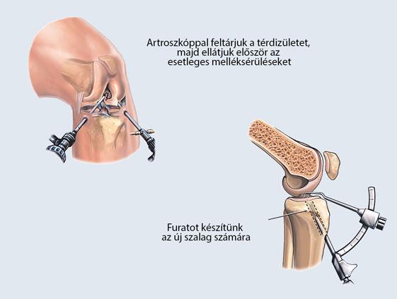Protézis típusok - Dr. Kovács Gyula Ortopédus