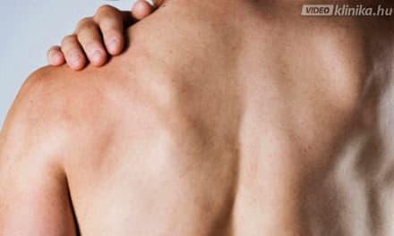 vállfájdalom rák argo ízületi kezelés