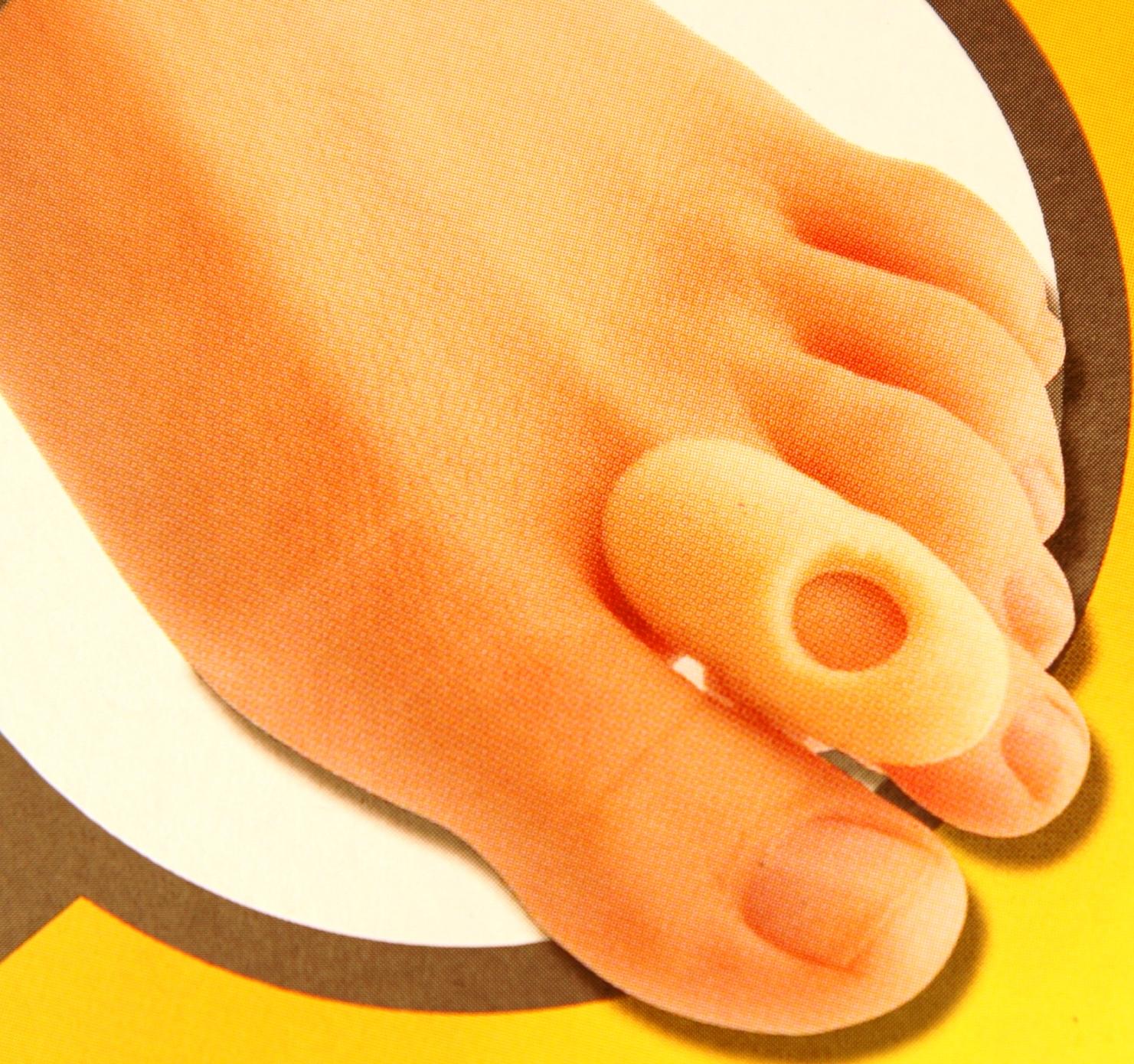 ízületi fájdalom láb deformáció