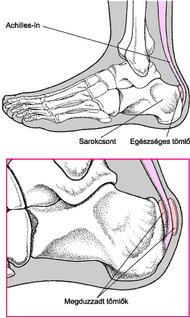 Hogyan kezeljük a lábakra gyakorolt hatásokat - Frissítő