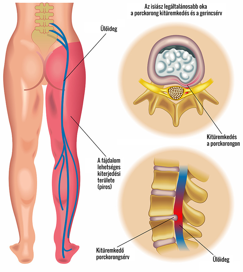 Ízületi gyulladás jelei: duzzanat a végtagokban, bizsergés a gerinc mentén - EgészségKalauz