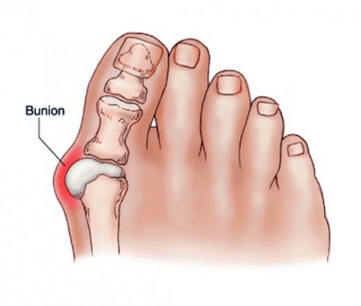 a térd artrózisának vagy ízületi gyulladásának azonosítása
