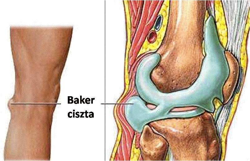 a térdízület 1. szakaszában lévő artrózis megnyilvánulásai ízületi fájdalom fejfájás gyengeség