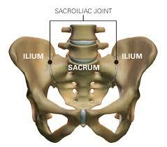 Csípőfertőző gyulladás, A csípő-keresztcsonti ízület gyulladása (sacroileitis)