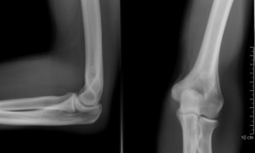 deformáló artritisz artrózis kezelése aki kezeli a térdízületeket