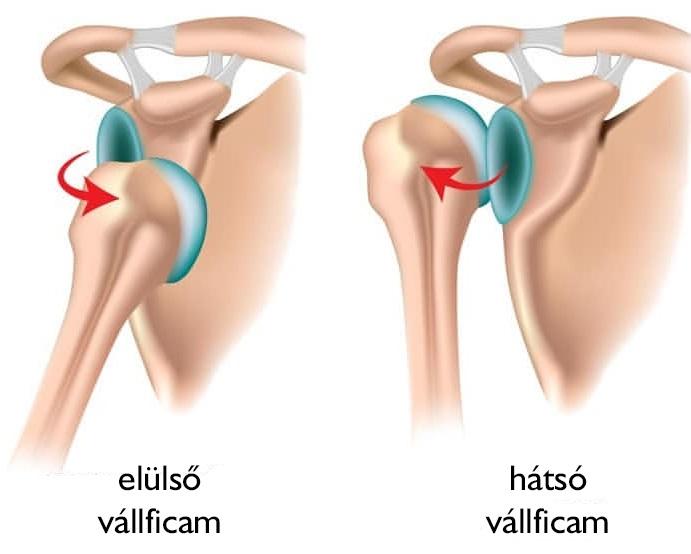 hogyan kezd fájni a karok ízületei fájdalom a csípőízület kötőelemeiben