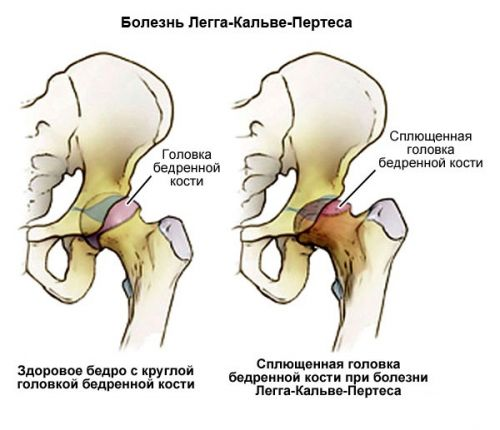 fáj a csípőízületben